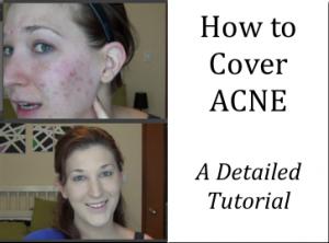 cover acne
